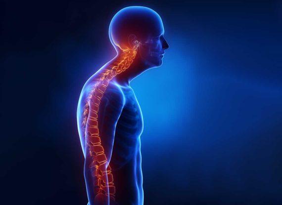 Die wichtigsten Ursachen von Rückenschmerzen