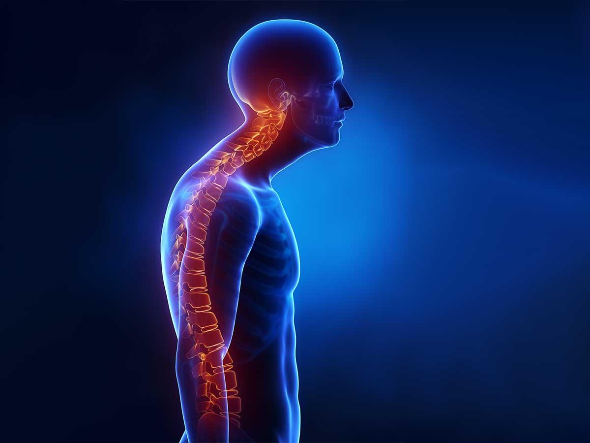 Rückenschmerzen-vom-Sitzen